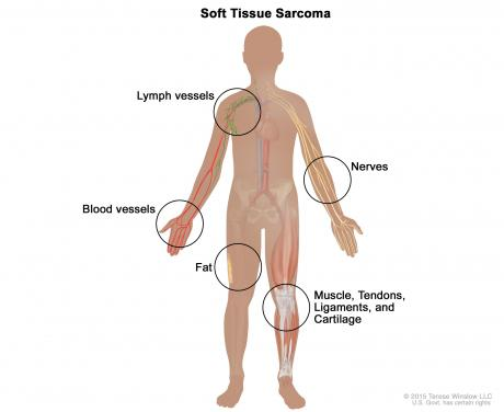 Bone Cancer-Soft tissue and bone sarcoma